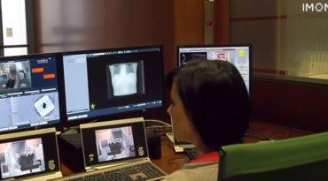 Radioterapia protegiendo el corazón