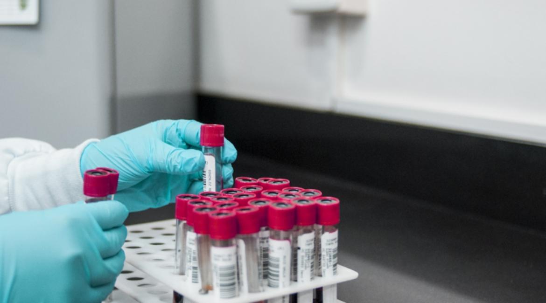 PCR y test de anticuerpos para la lucha contra la COVID- 19 en Asturias